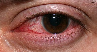 Effects of long-term contact lens wear on the cornea - Keratitis, or an inflammation of the cornea
