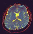 Diffusion MRI 105025 rgbc.png