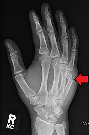 hairline fracture in wrist healing time
