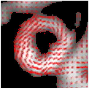 HARP (algorithm) - Result of HARP tracking of a tagged cardiac MRI slice.