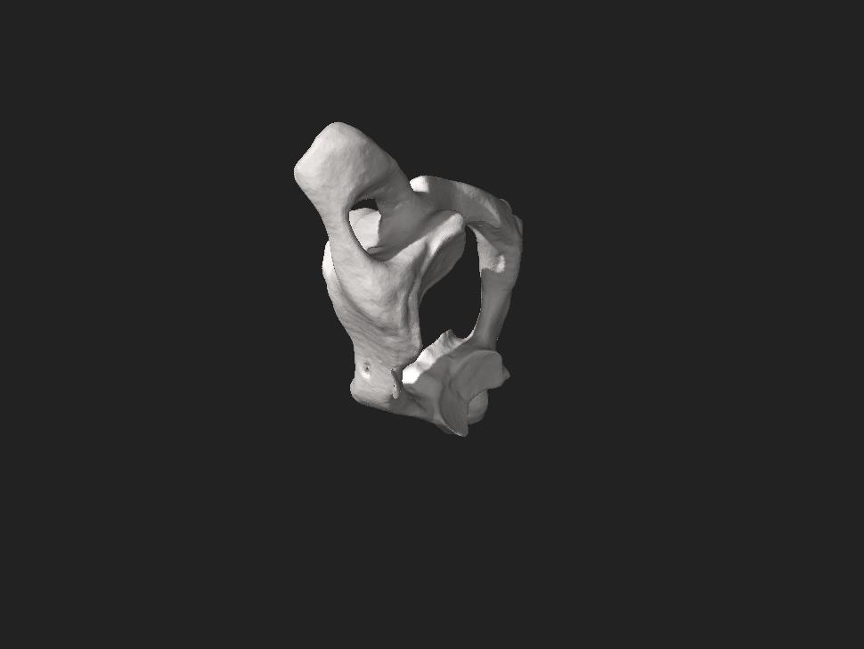 Human atlas bone.stl
