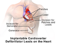 Implantable Cardioverter Defibrillator Outside Leads.png
