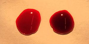 Red blood cell - Two drops of blood are shown with a bright red oxygenated drop on the left and a deoxygenated drop on the right.