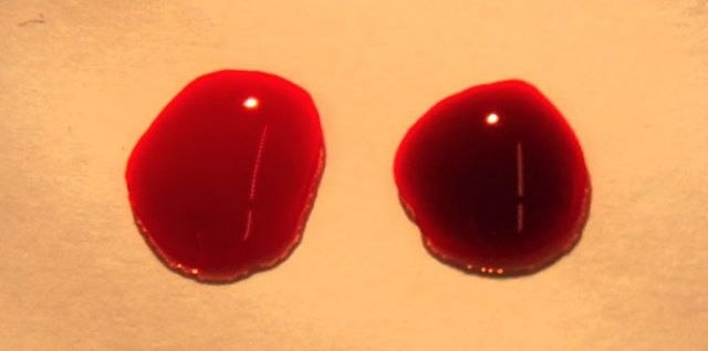NIK 3232-Drops of blood medium