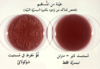 Neisseria gonorrhoeae 01-ar.png