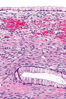 Mucinous cystadenoma Human disease