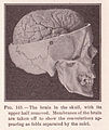 Page 215 Skull and Brain.jpg