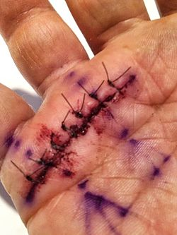 Post-operative photo of trigger finger release surgery.jpg