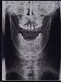 Röntgenbild-männlich-vorne.jpg