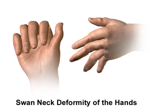 Rheumatoid Arthritis (Swan Neck Deformity)