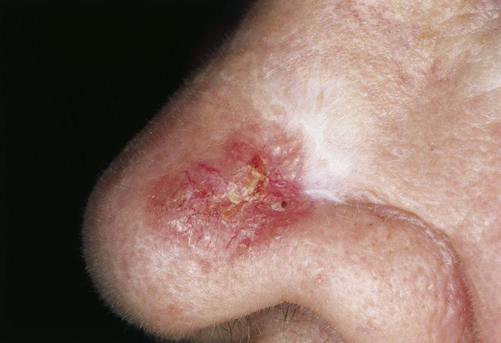 Le psoriasis les symptômes de la tête