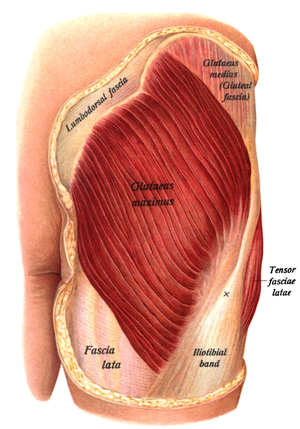 Gluteus maximus muscle - The gluteus maximus, with surrounding fascia. Skin covering area removed.