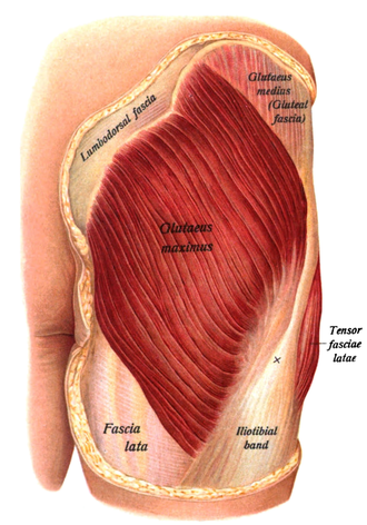 Gluteus maximus - The gluteus maximus, with surrounding fascia. Skin covering area removed.