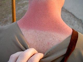 Sunburn Burning of the skin by the suns radiation