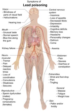 Chart of a human body with arrows pointing pieces of text to different parts of the body