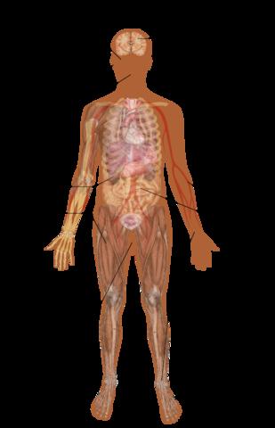 The Tin Syndrome - No Ordinary Sickness