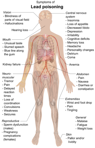 A chart of a human body with arrows pointing pieces of text to different parts of the body