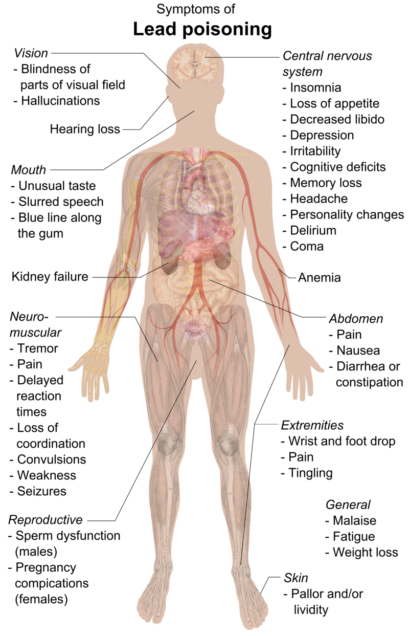 Symptoms of lead poisoning (raster).png