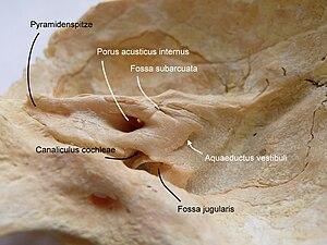 Petrous part of the temporal bone - Image: Temporal bone 1