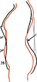 Toleration of the corset1056fig50 .png