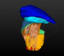 File:Ultra-High-Field-MRI-Post-Mortem-Structural-Connectivity-of-the-Human-Subthalamic-Nucleus-Video1.ogv