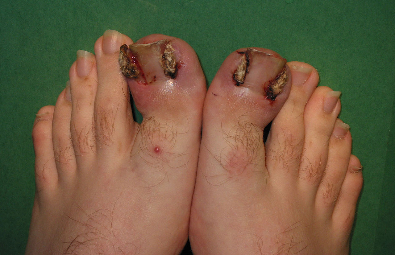 Surgical Treatment Of Ingrown Toenails Wikiwand