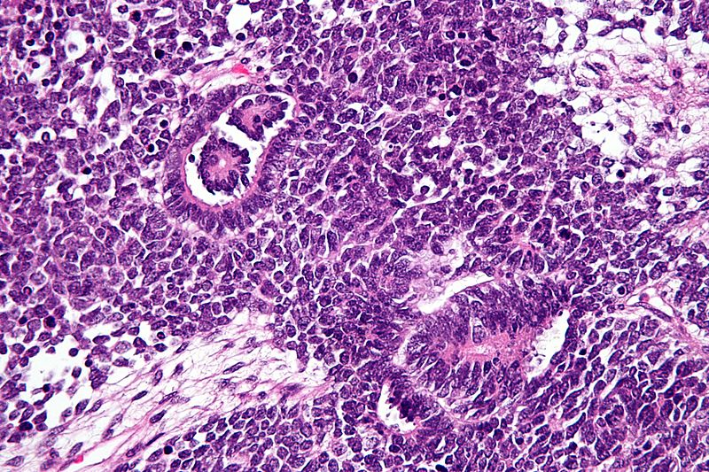Pathology Outlines - Nephroblastoma (Wilms tumor)