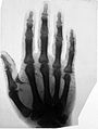 X-ray photograph of Lord Lister's hand. Wellcome L0018632.jpg