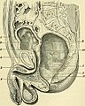 A manual of modern surgery - an exposition of the accepted doctrines and approved operative procedures of the present time, for the use of students and practitioners (1899) (14596132480).jpg