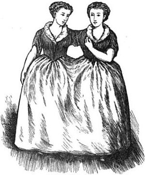 Two women conjoined at the shoulder and waist