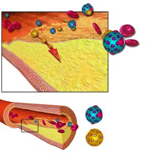 Atherosclerosis - Wikipedia