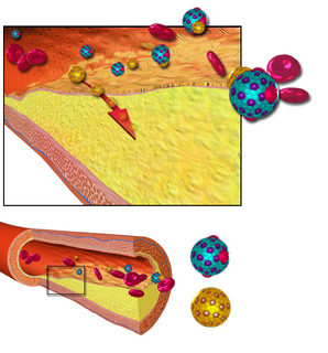 Arteriosclerosis thickening, hardening and loss of elasticity of the walls of arteries