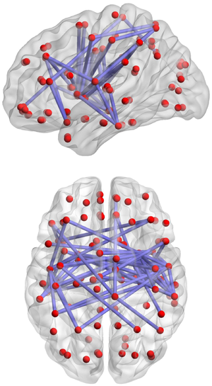 Biological neural network - An example of a neural network in a human brain