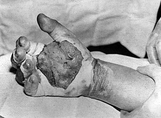 Harry Daghlian - Harry K. Daghlian's blistered and burnt hand after he received his fatal radiation dose.