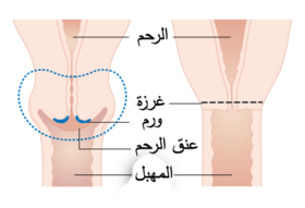 Diagram showing the parts removed with trachelectomy surgery CRUK 338-ar.png