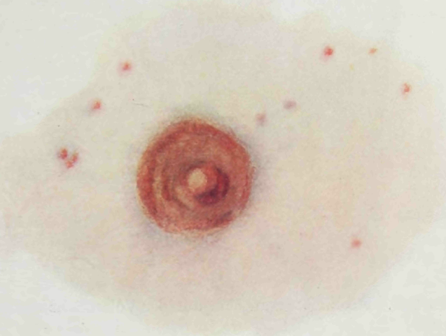 File:Epidemic Typhus  Petechial rash in the vicinity of the nipple