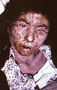 Female smallpox patient -- late-stage confluent maculopapular scarring.jpg