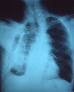 Fibrothorax on chest x-ray
