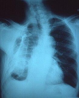 Fibrothorax
