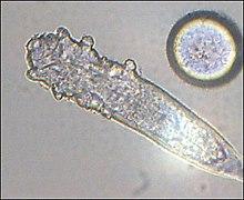 Sebaceous gland - Simple English Wikipedia, the free