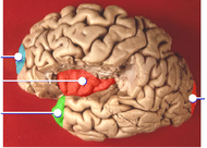Insula and poles of brain lobes.png