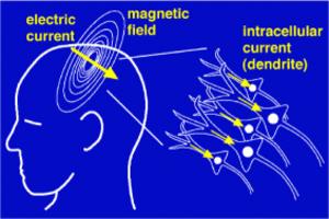 Mind uploading - Image: Magnetoencephalograp hy