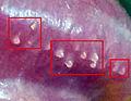 Papillaris genitalis.jpg
