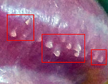 珍珠状丘疹治疗_珍珠疹 - 维基百科,自由的百科全书