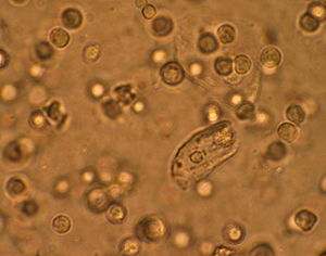 English: White blood cells seen under a micros...