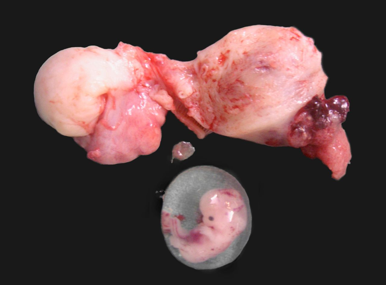 File:Ruptured cornual ectopic pregnancy.jpg - Wikimedia Commons