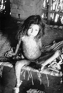 Girl perhaps four or five years old sitting on cot, covered with sores.