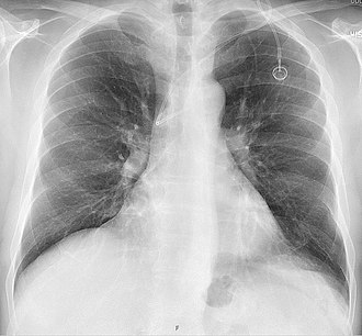 Port (medical) - Follow-up chest X-ray after insertion of a port, with a malpositioned tip in the azygos vein.
