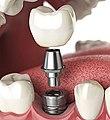 اجزاء تكوين زراعة الأسنان الفورية.jpg