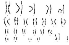Karyotype of 47, XXY. The only difference for 48, XXXY would be a third X chromosome.